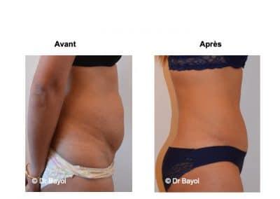 plastie abdominale Annecy