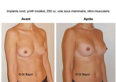 plastie d'augmentation mammaire par implants Lyon