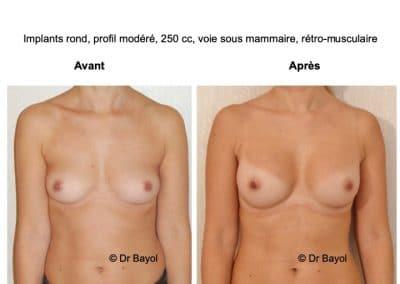plastie d'augmentation mammaire par prothèses Lyon