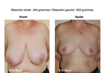 plastie de réduction mammaire