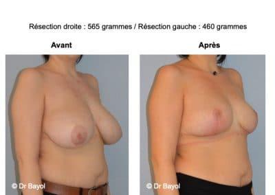 plastie de réduction mammaire Aix-les-Bains