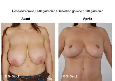 plastie de réduction mammaire Lyon