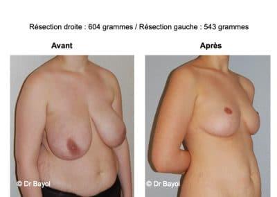 plastie mammaire de réduction Aix-les-Bains