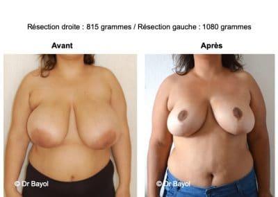 plastie mammaire de réduction Annecy