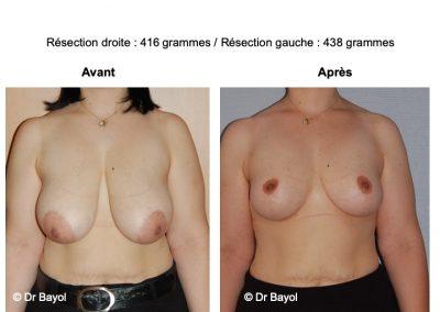 plastie mammaire de réduction Lyon