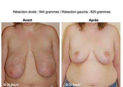 plastie mammaire de reduction Lyon