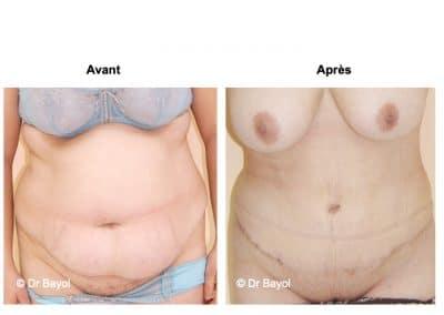 plastie abdominale Aix-les-Bains
