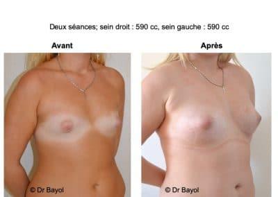 prix lipofilling des seins Lyon