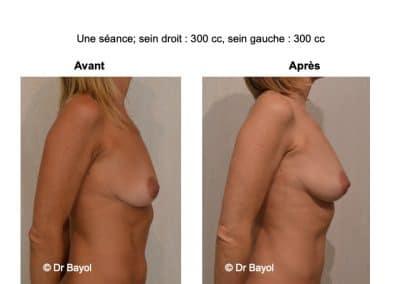 prix lipostructure des seins Lyon