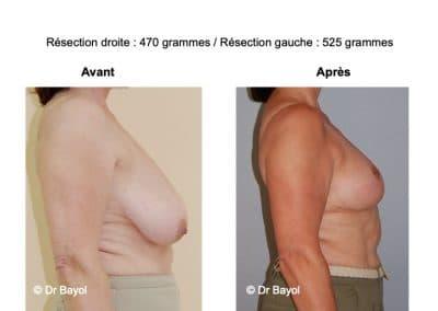 prix plastie mammaire de réduction Lyon