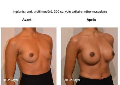 prix prothèses mammaires Lyon