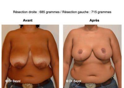 prix réduction mammaire Lyon