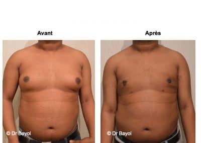prix traitement gynécomastie Lyon