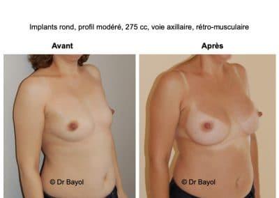 prothèses mammaires à Aix-les-Bains