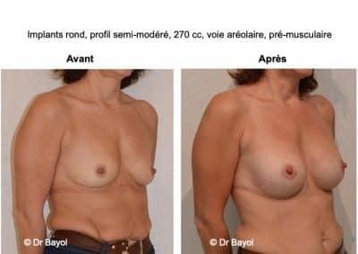prothèses mammaires à Lyon