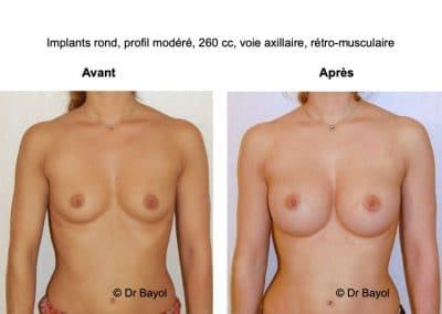 prothèses mammaires Aix-les-Bains