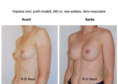 prothèses mammaires Annecy