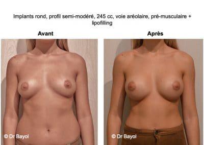 prothèses mammaires Lyon