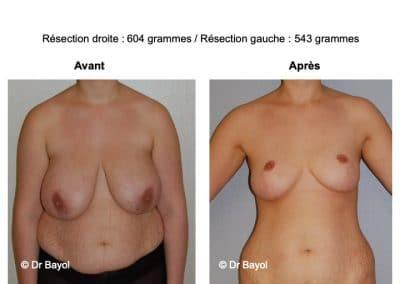 réduction mammaire Aix-les-Bains