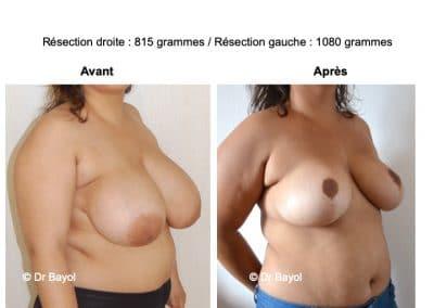 réduction mammaire Annecy
