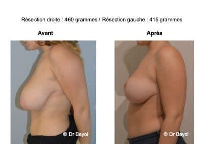 reduction mammaire Lyon