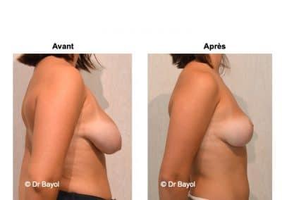 tarif cure de ptose mammaire
