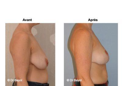 tarif cure de ptose mammaire Lyon