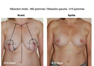 tarif mammoplastie de réduction Lyon