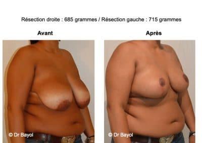 tarif réduction mammaire Lyon
