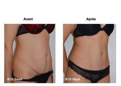tarifs abdominoplastie Lyon