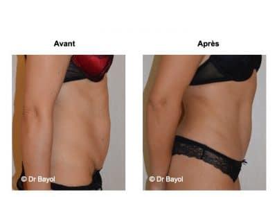 tarifs dermolipectomie abdominale Lyon