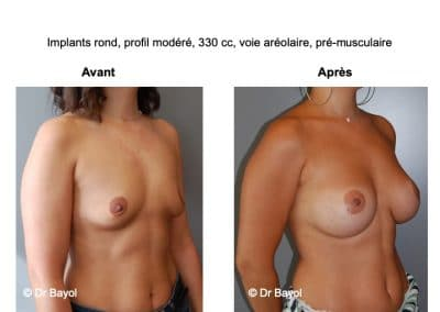 tarifs implants mammaires Lyon