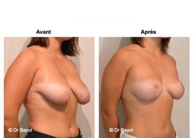 tarifs lifting des seins