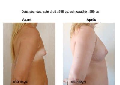 tarifs lipofilling des seins Lyon