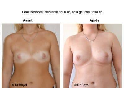 tarifs lipostructure des seins Lyon