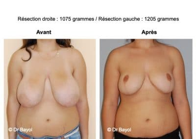 tarifs mammoplastie de réduction Lyon