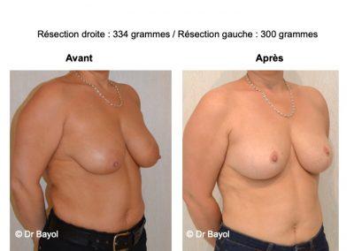 tarifs plastie mammaire de réduction Lyon