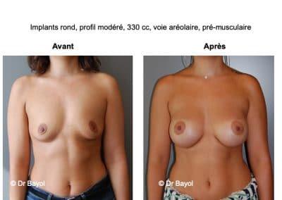 tarifs prothèses mammaires Lyon