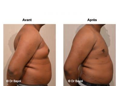 tarifs traitement gynécomastie Lyon
