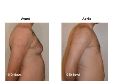 traitement gynécomastie Lyon