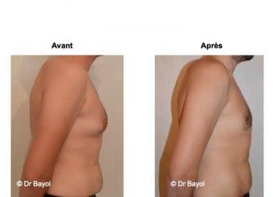 traitement gynecomastie Lyon