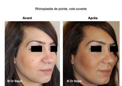 chirurgie du nez Lyon