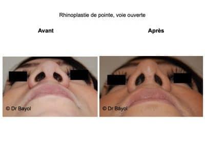 chirurgie esthétique du nez Lyon