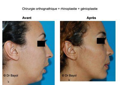 chirurgie orthognathique Lyon