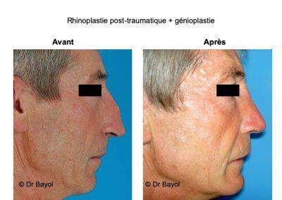 profiloplastie à Lyon