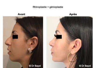profiloplastie Lyon