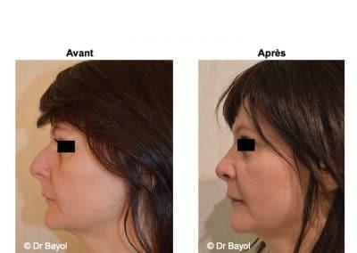 rhinoplastie à Aix-les-Bains