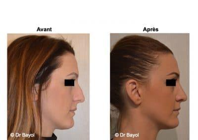 rhinoplastie à Lyon