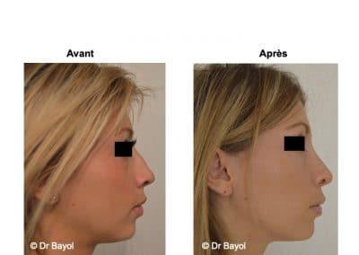 rhinoplastie Aix-les-Bains