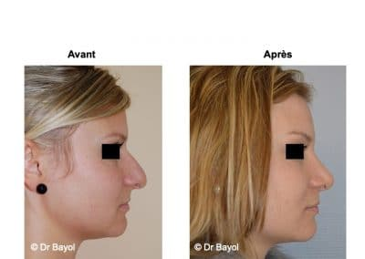 rhinoplastie Grenoble